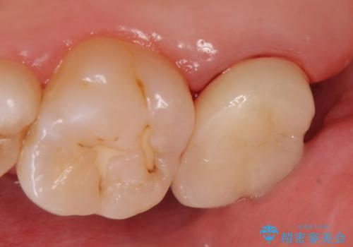 オールセラミッククラウン 鈍痛が続く奥歯の治療の治療後