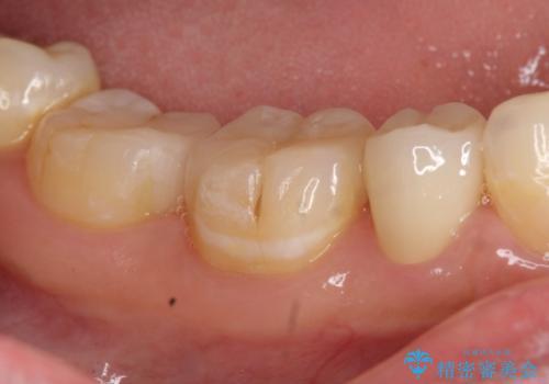 オールセラミッククラウン セラミックインレー しみる奥歯の治療の治療後