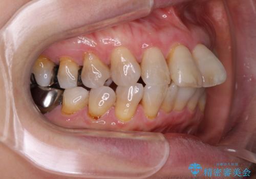 閉じにくい口元を改善したい ワイヤー装置での抜歯矯正の治療前