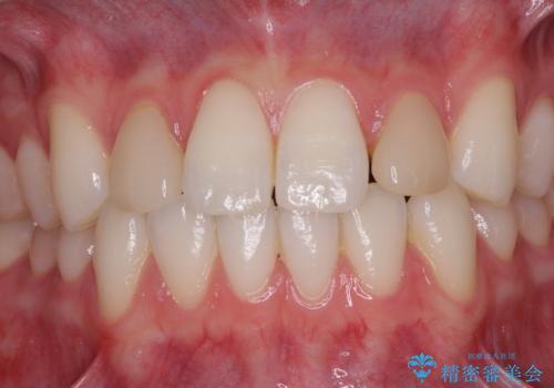 ラミネートの前歯をオールセラミッククラウンで自然にの治療前