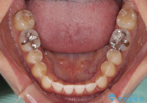 前歯のデコボコ インビザラインによる矯正治療の治療後