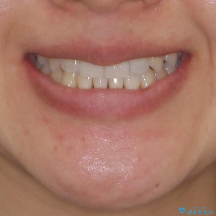 前歯のデコボコ インビザラインによる矯正治療の治療後(顔貌)