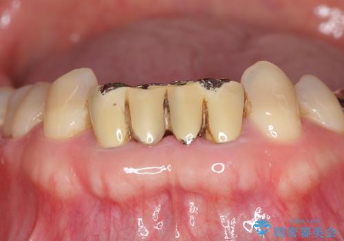 前歯の保険のブリッジ 欠けてしまったのをやり直したいの治療前
