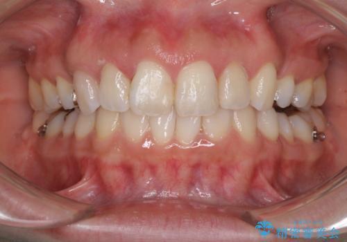 前歯の突出を軽減 インビザラインによる抜歯矯正の治療中