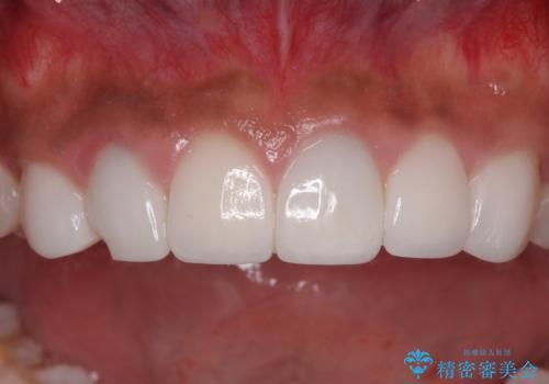 欠けてしまった前歯のセラミック 同じ色合いで再製作の治療前