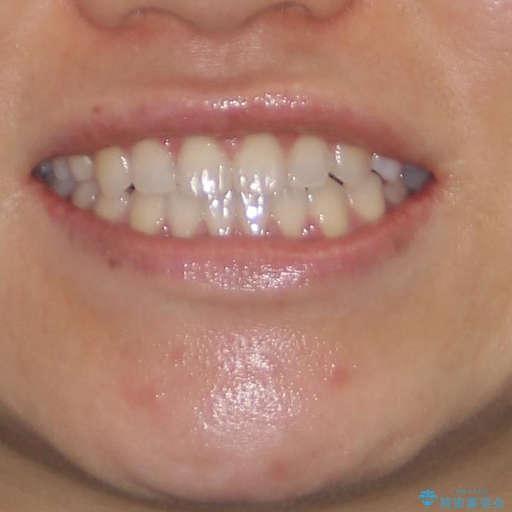 隙間の空いた前歯を治したい インビザライン矯正治療の治療後(顔貌)
