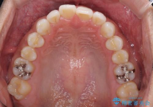 気になる後戻り 前歯をインビザライン・ライトで改善の治療前