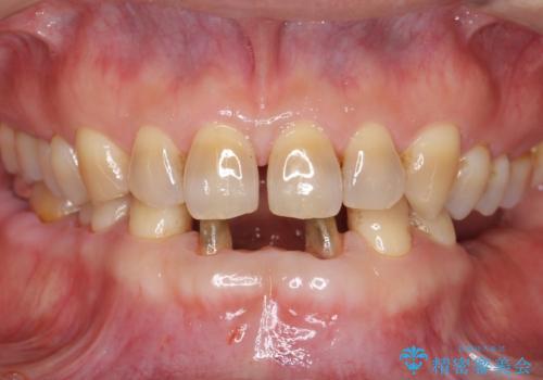 前歯の保険のブリッジ 欠けてしまったのをやり直したいの治療中
