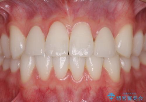 ラミネートの前歯をオールセラミッククラウンで自然にの治療後