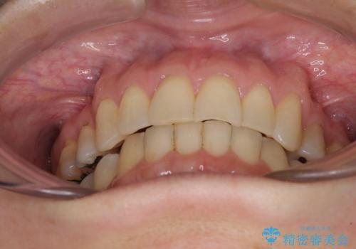矯正の後戻りの改善と銀歯をセラミックにの治療後