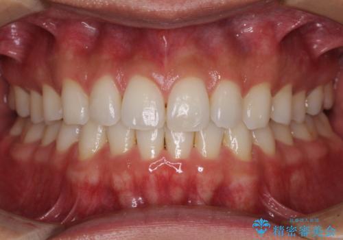 気になる後戻り 前歯をインビザライン・ライトで改善の治療後