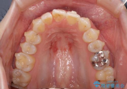 気になる上の歯を改善 インビザライン矯正の治療中