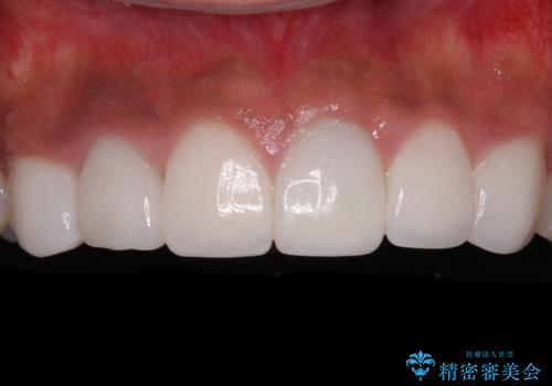 欠けてしまった前歯のセラミック 同じ色合いで再製作の治療後