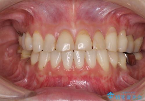 矯正しても虫歯が気になる 前歯のオールセラミッククラウンの治療前
