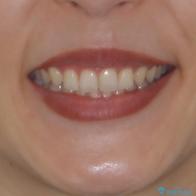 隙間だらけの歯列をきれいに インビザライン矯正とセラミック補綴治療の治療後(顔貌)