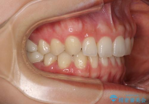 隙間だらけの歯列をきれいに インビザライン矯正とセラミック補綴治療の治療後