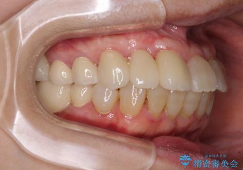 歯周病改善のための総合歯科治療の治療後