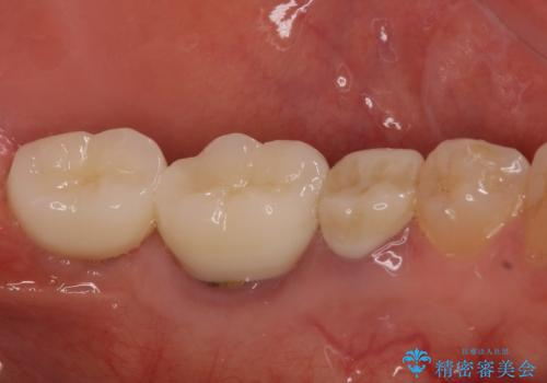 痛みを感じる奥歯 根管治療とインプラント治療の治療後