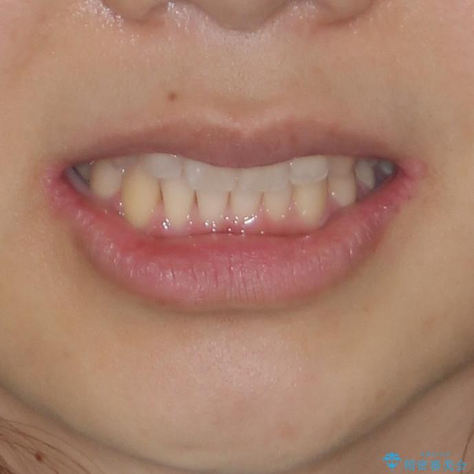 海外勤務中のインビザラインによる矯正治療の治療後(顔貌)
