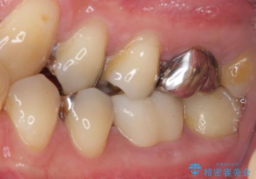 保険診療で装着した奥歯の白いクラウン 痛みが続くためセラミッククラウンへの治療後