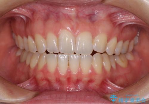 気になる上の歯を改善 インビザライン矯正の治療前