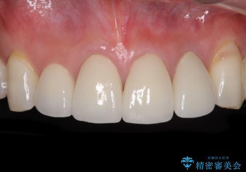 前歯クラウン(オールセラミック)の症例 治療後