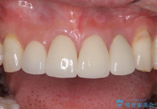 矯正しても虫歯が気になる 前歯のオールセラミッククラウンの治療後