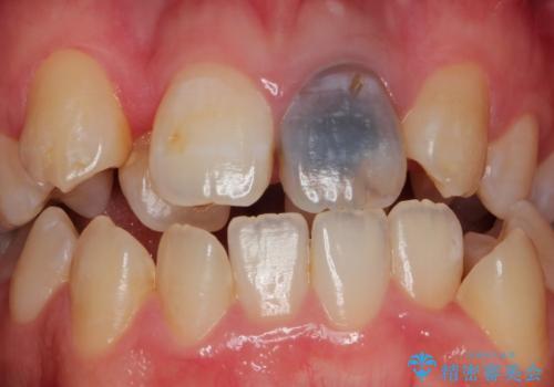 前歯が黒い セラミックで綺麗に 20代女性の治療前