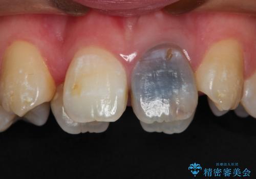 前歯が黒い セラミックで綺麗に 20代女性の症例 治療前