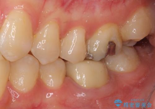 形が気に入らない 奥歯のオールセラミッククラウンの治療後
