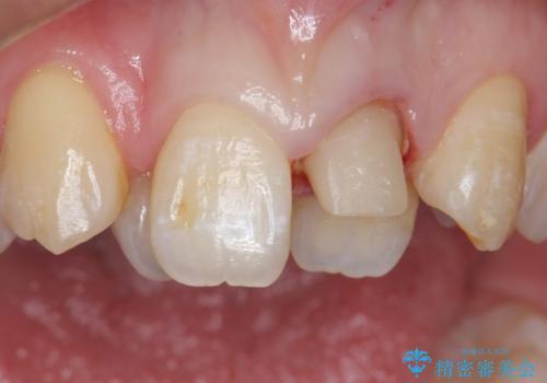 前歯が黒い セラミックで綺麗に 20代女性の治療中