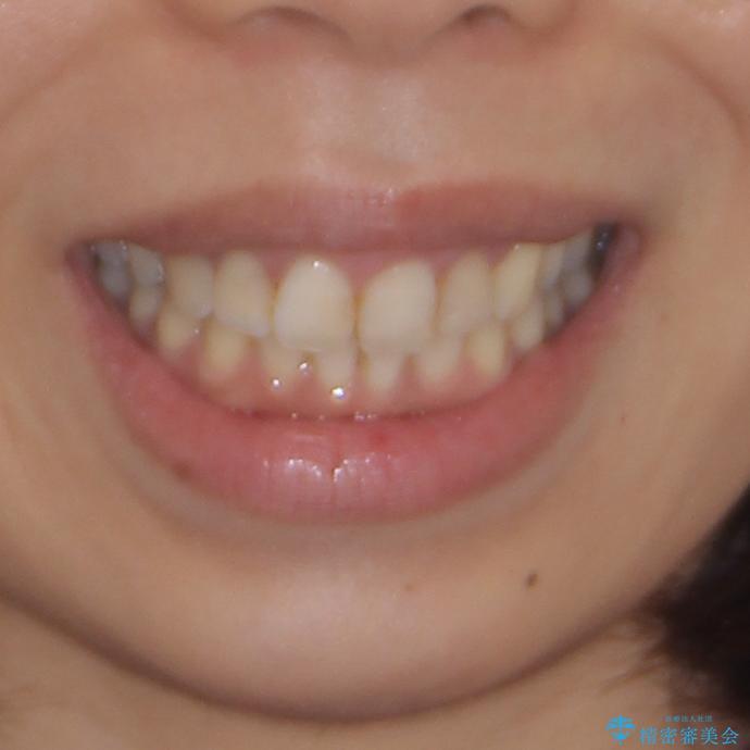 前歯の突出を軽減 インビザラインによる抜歯矯正の治療後(顔貌)