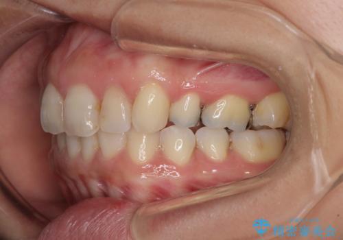 前歯の突出を軽減 インビザラインによる抜歯矯正の治療後