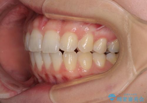気になる上の歯を改善 インビザライン矯正の治療後