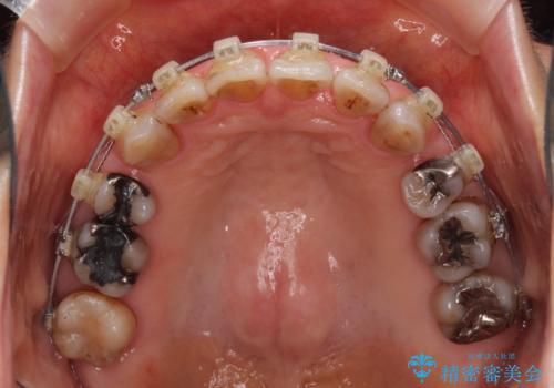 閉じにくい口元を改善したい ワイヤー装置での抜歯矯正の治療中