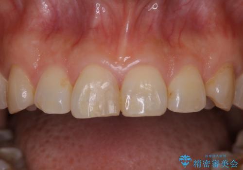 何度も欠けてしまう前歯を被せ物で治療の治療前