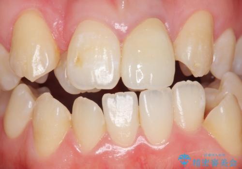 前歯が黒い セラミックで綺麗に 20代女性の治療後