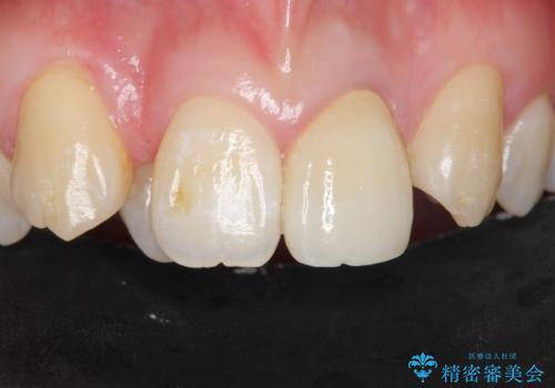 前歯が黒い セラミックで綺麗に 20代女性の症例 治療後