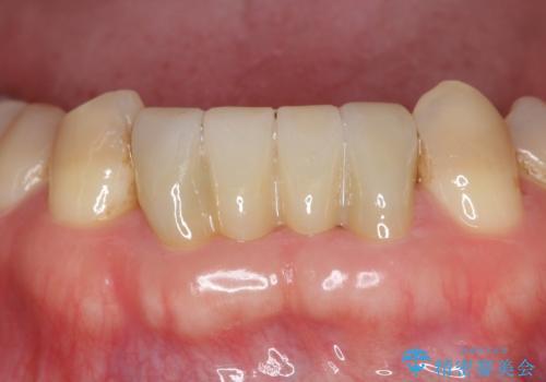 前歯の保険のブリッジ 欠けてしまったのをやり直したいの治療後