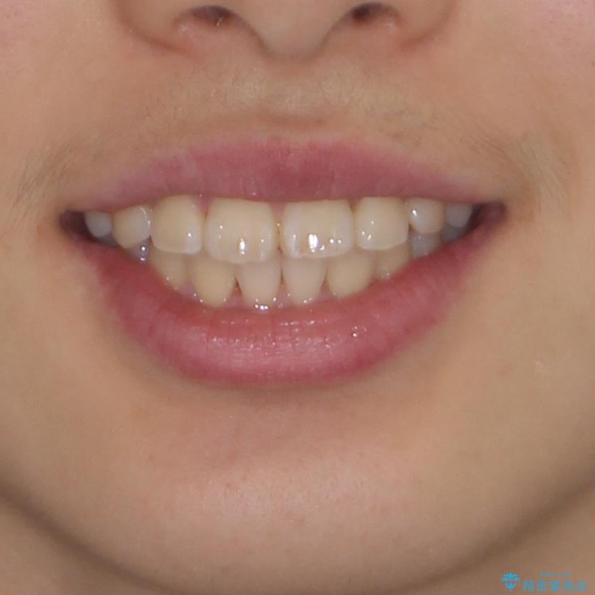 前歯のデコボコを短期間で治療 目立たないワイヤー矯正の治療後(顔貌)