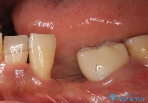 インプラント 左下奥歯の咬み合わせの改善の治療前