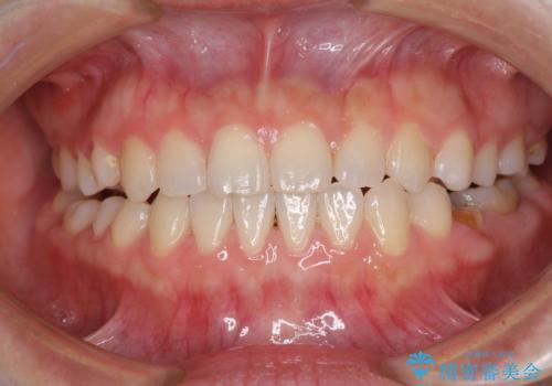 隙間の空いた前歯を治したい インビザライン矯正治療の治療中