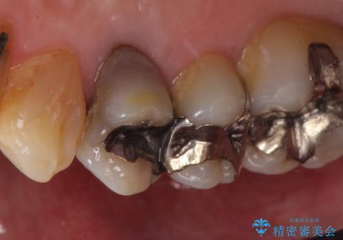 オールセラミッククラウン 変色した歯を白くの治療前