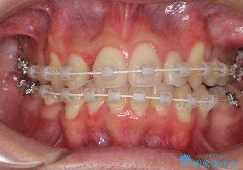 八重歯を治したい 目立たないワイヤー装置での抜歯矯正の治療中