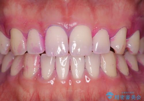 染め出しをして磨き残しのチェックと歯のクリーニングの治療前