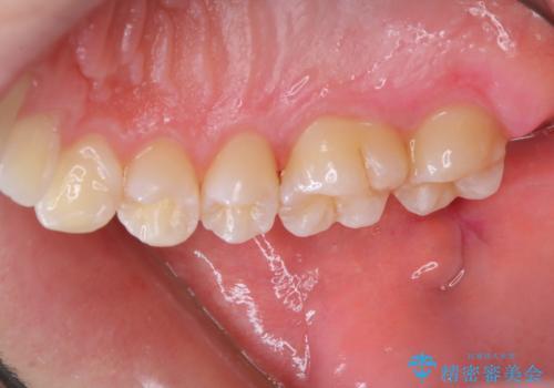 染め出しをして磨き残しのチェックと歯のクリーニングの治療後