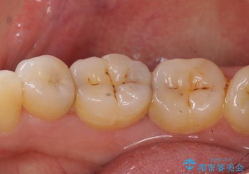 オールセラミッククラウン セラミックインレー しみる奥歯の治療の治療前