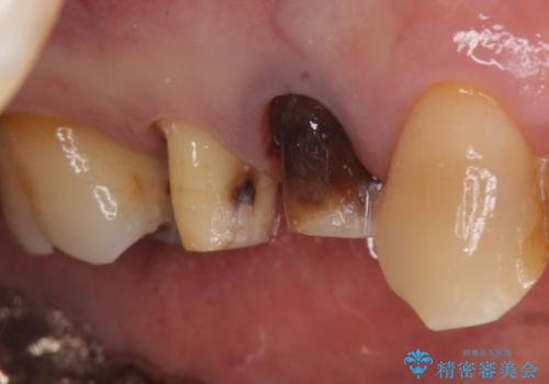 オールセラミッククラウン 変色した歯を白くの治療中