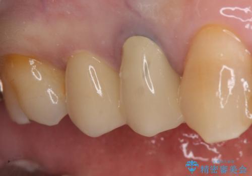 オールセラミッククラウン 変色した歯を白くの治療後
