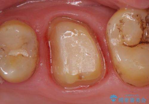 オールセラミッククラウン 失活歯の根管治療の治療中